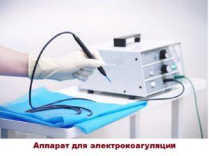 Внешний вид аппарата для электрокоагуляции