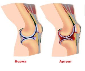 При инфекционном артрите дипроспан не вводить