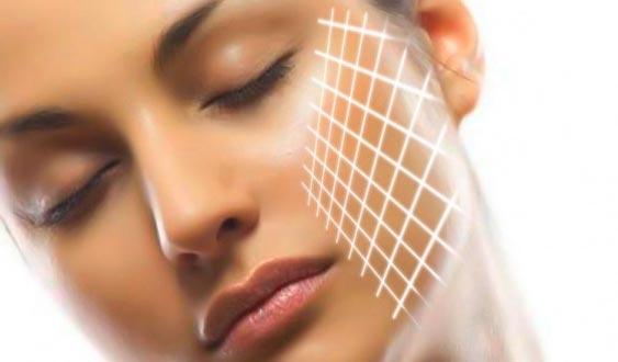 Биоармирование - создание прочного каркаса для кожи