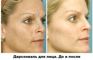 До и после Дарсонвализации лица.