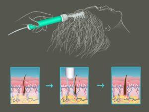 Схема изменений при дарсонвализации волос