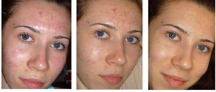 Дарсонваль для лица и волос: польза и противопоказания
