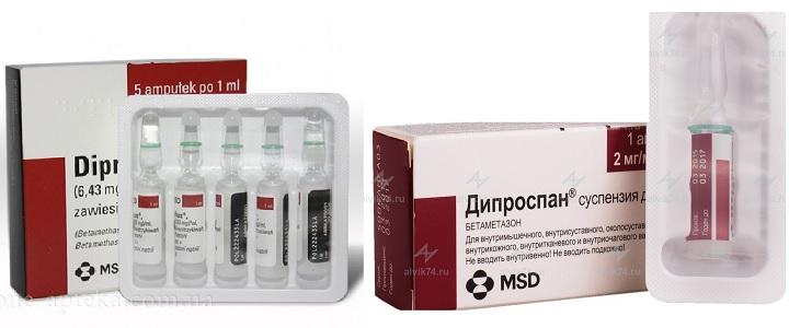 Инъекции Дипроспан для лечения заболеваний суставов