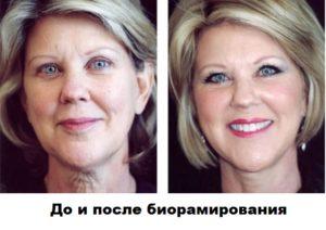 Биорамирование. До и после процедуры