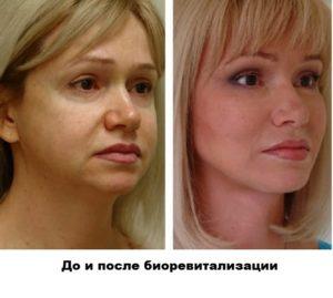 Биоревитализация. До и после процедуры