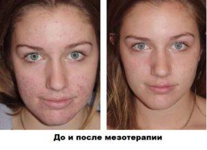 Мезотерапия. До и после процедуры