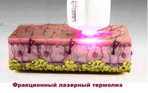 Схема фракционного лазерного влияния на кожу