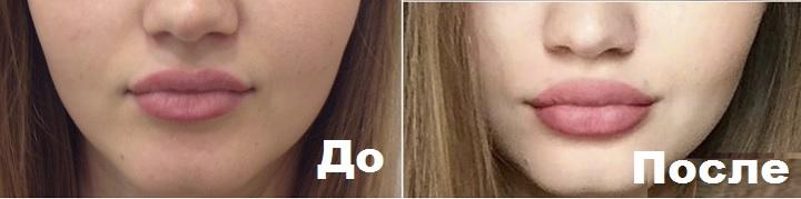 До и после введения гиалуроната