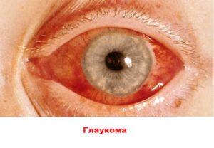 Побочка дипроспана - глаукома