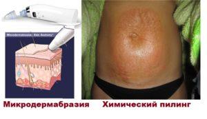 Пилинг или дермабразия при растяжках
