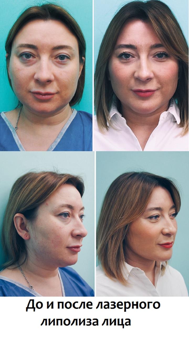 До и после лазерного липолиза лица