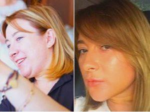 До и после лазерного липолиза подбородка