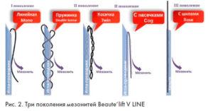 Мезонити Bеаute lift V-linе для подтяжки лица