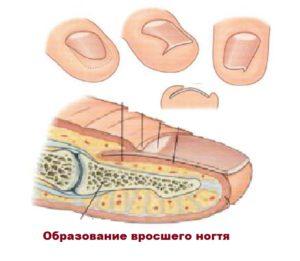 Строение пальца и ногтя