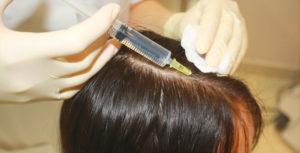 Озонотерапия для более быстрого роста волос
