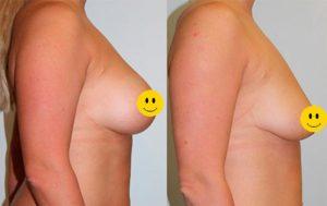 Результат париаолярной подтяжки груди