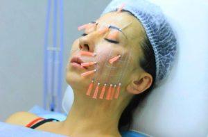 Процедура подтяжки лица нитями