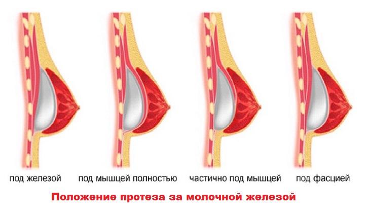 Грудь в разрезе. Положение импланта