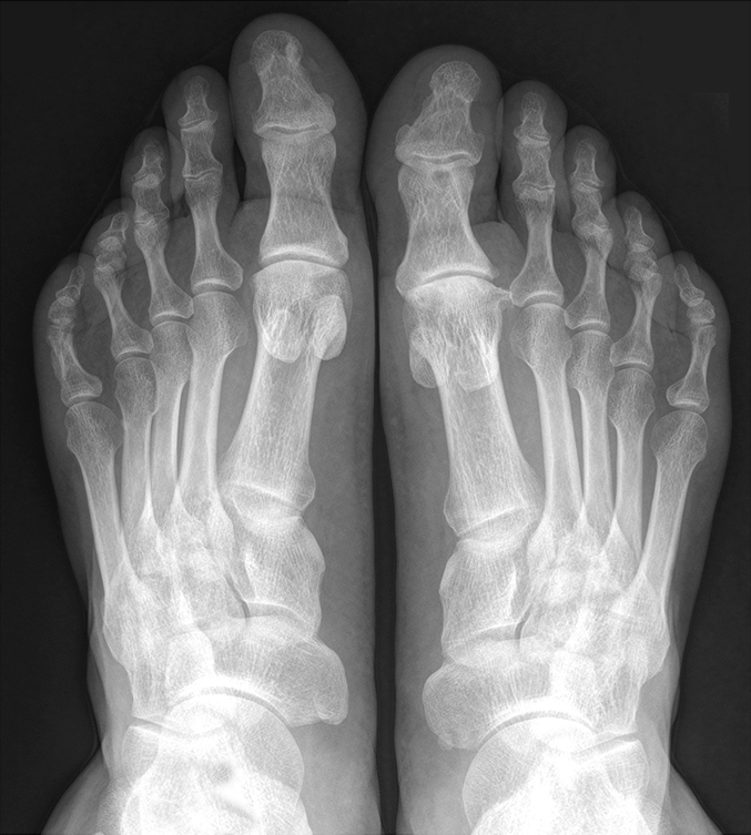 Рентгенография стопы ноги