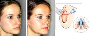 Пример ринопластики раздвоенного носа
