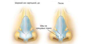 Ринопластика широкого носа схема