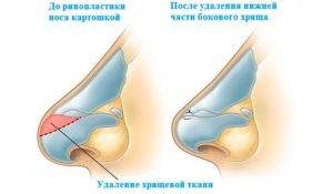Поднятие кончика носа методом удаления небольшой части костно-хрящевой основы