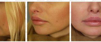 До и после введения жира в губы