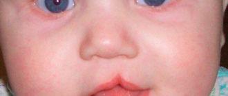 Заячья губа у малышей