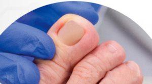Ноготь после лечения вросшего ногтя
