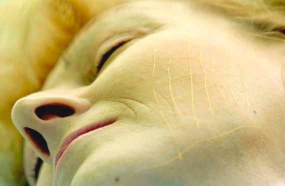 Золотые мезонити для лица