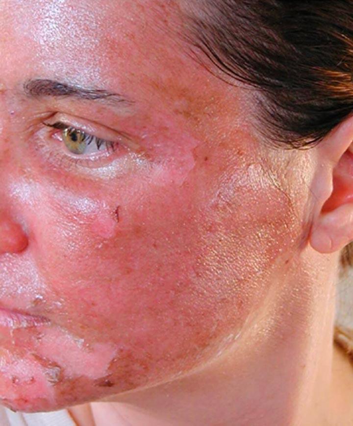 Аллергические реакции после проведения пилинга