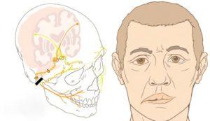 Асимметрия лица у человека, если был поражен нерв на лице