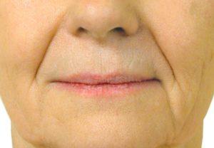 Складки носогубной зоны лица