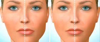 Асимметрия лица – это такое состояние человека, при котором в лицевой части черепа нарушена симметрия.