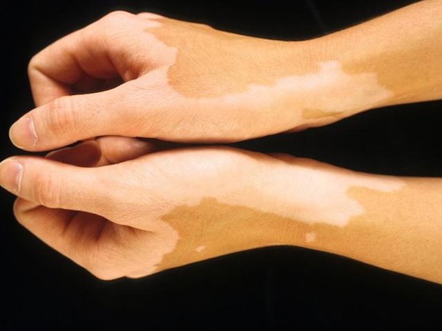 Белые пятна на коже: фото, причины, лечение