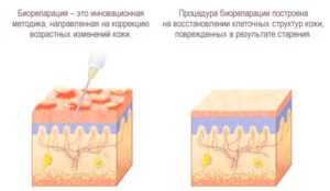 Биорепарация - метод воздействия на организм
