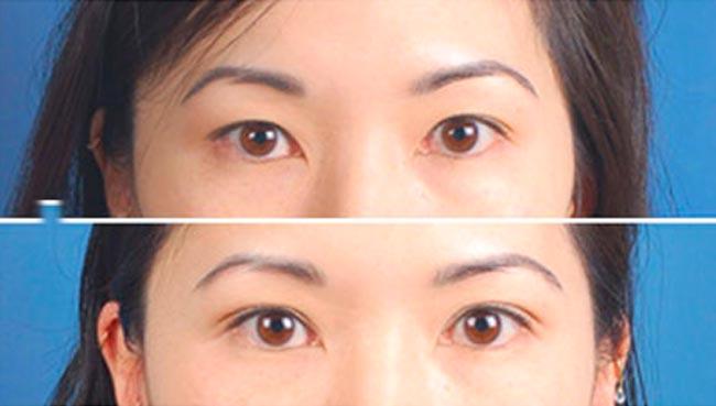 Блефаропластика так называемых «азиатских глаз».
