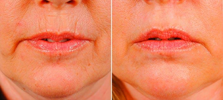 Применение ботокса при морщинах вокруг рта