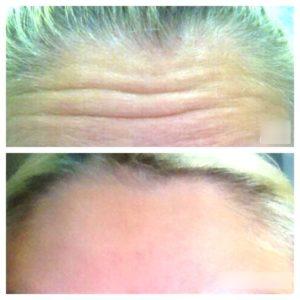До и после ботокса в лобной зоне