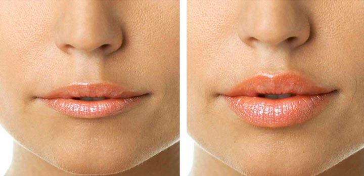 Результат ботокса губ