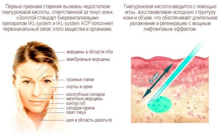 Принцип действия уколов гиалуроновой кислоты