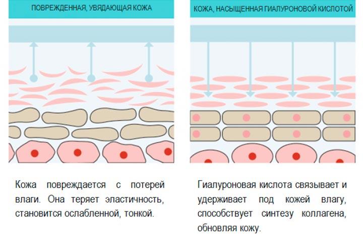 Как воздействует гиалуроновая кислота на кожу