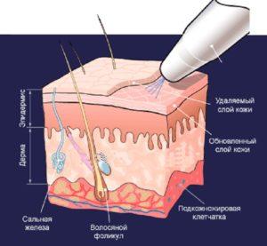 Схема снятия слоя при дермабразии