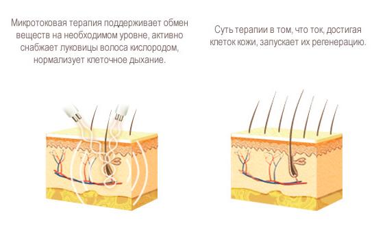 Действие микротоков