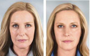 Женщина 45 лет до и после ботокса
