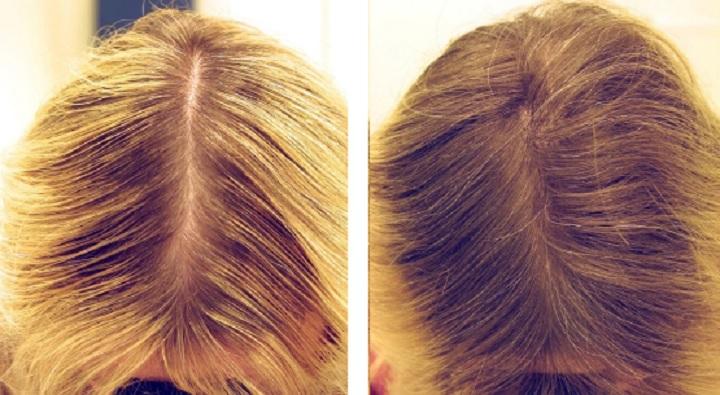 Результат мезотерапии волос