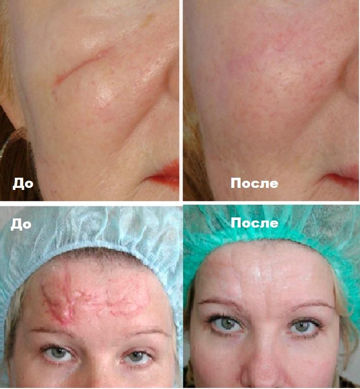 Лицо до и после шрамов