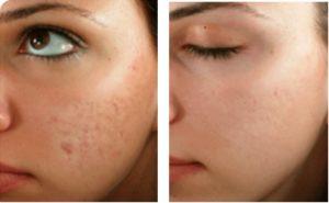 Лицо до и после рубцов