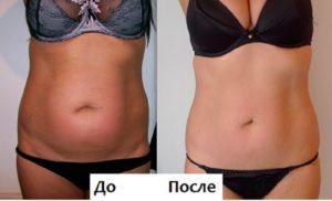 Фото до и после процедуры УЗ-липосакции