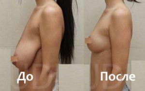 После уменьшения груди и до